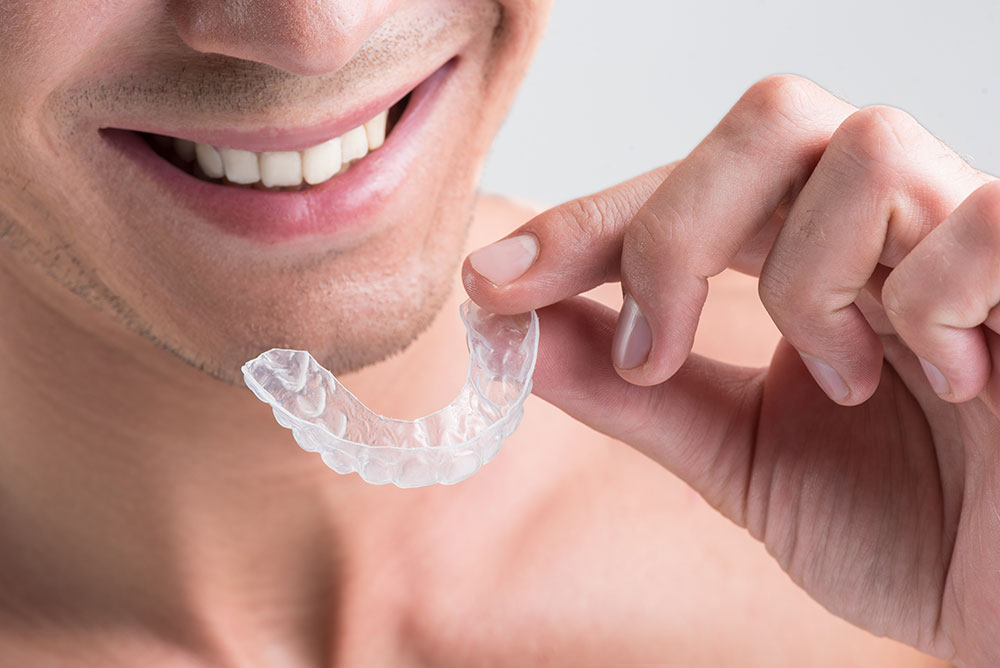 Am I a Good Candidate For Invisalign